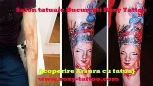 salon tatuaje bucuresti preturi acoperire operatie cicatrice arsura